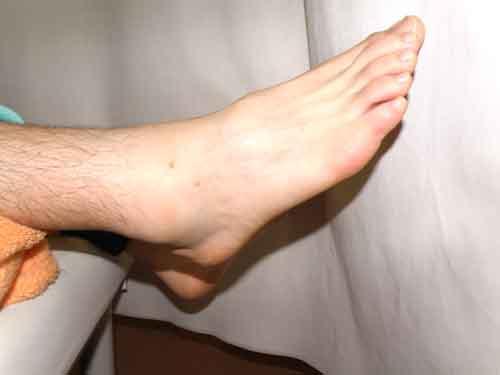 足首の腫れ、画像